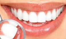 Çürük Diş Baş Ağrısı Yapar mı?