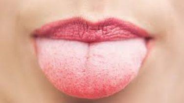 Dil Emme Alışkanlığı
