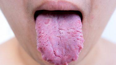 Dil Kökünde Kabarcıklar