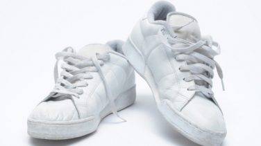 Adidas Superstar Önü Sarardı